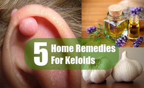 5 home remedies for keloid scars