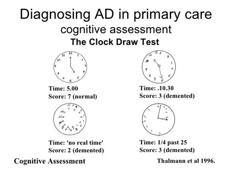 test alzaimer robbins alzheimers dementia toma 2006
