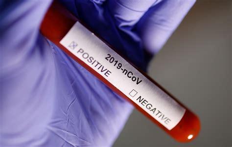 coronavirus covid  schnelltest funktioniert laut