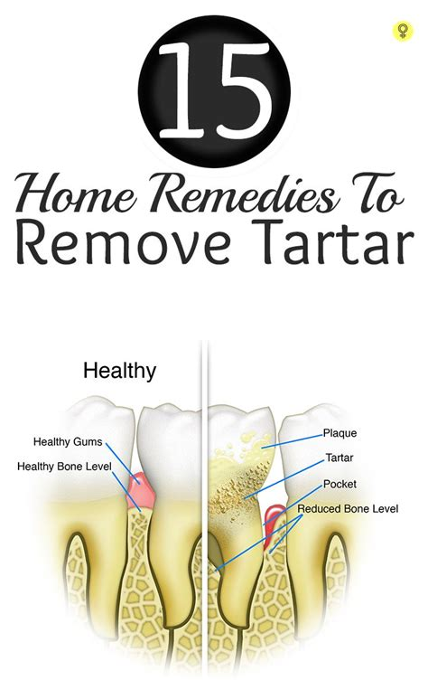 18 amazing home remedies to remove tartar and plaque from