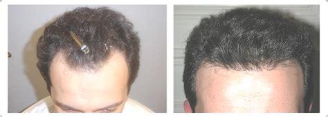 hair transplant center nyc hair transplantations nyc hair transplantations nyc hair restorations nyc hair loss