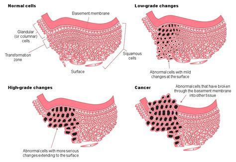 cervical cancer diagram diagram of cone biopsy diagram of mastectomy elsavadorla