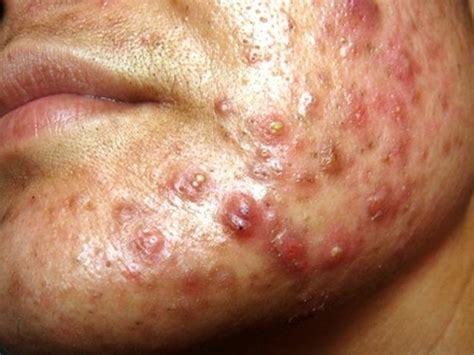 imagenes acne vulgar acne conglobata pictures treatment symptoms causes