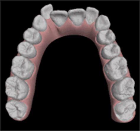 apparecchio denti interno costi invisalign ortodonzia invisibile studio dentistico dr