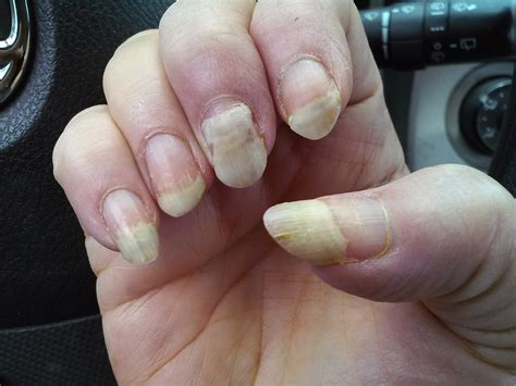 Finger Nails by Image Gallery Lost Fingernail