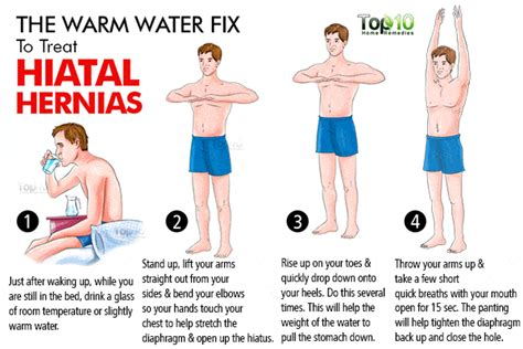 home remedies  hiatal hernias top  home remedies