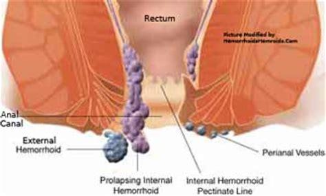 hemorrhoid diagram home www hemorrhoidshemroids