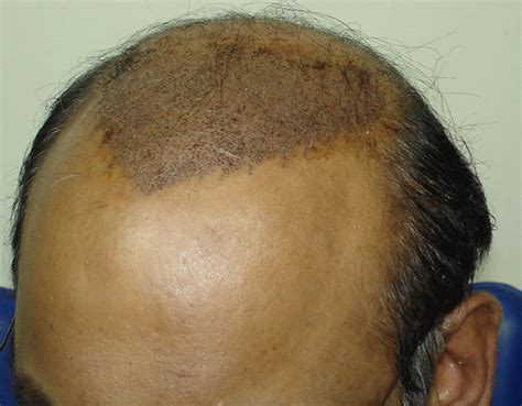 best hairstyles for scalp psoriasis best hair cuts for psoriasis hairstylegalleries com
