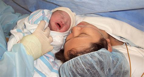 what is elective c section elective c section babycenter