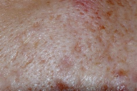Can Blisters In And Hair Loss Be From Detox by What Are The Causes Of Hair Loss Scalp Bumps Blood