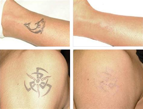 learn tattoo removal removal before and after issues and learn how to