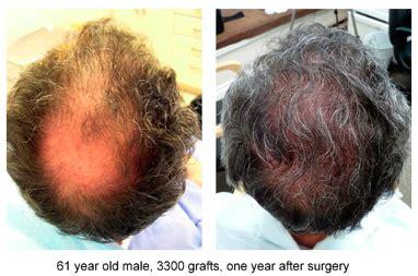 black man 3000 grafts top ten 2500 3000 graft hair transplants by dr jones dr