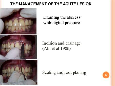 periodontal abscess