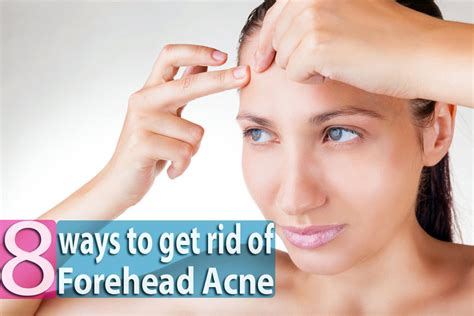 what can you use to get rid of bed bugs 8 ways to get rid of forehead acne overnight