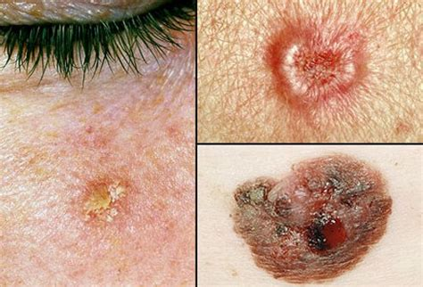 skin tumors opinions on skin cancer
