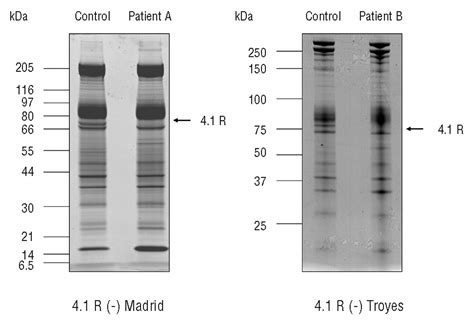 protein 4 1r 4 1r deficient human blood cells altered