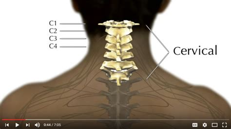 cervical spinal cord injury prognosis recovery at