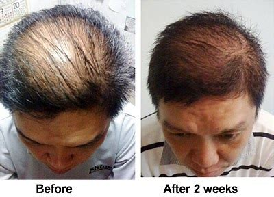 2 weeks after ac section jual nutriol hair fitness treatment thenewme tokopedia