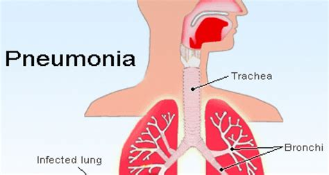 Ornitho Obat Snot Pernafasan penyebab pneumonia gejala penyakit pneumonia