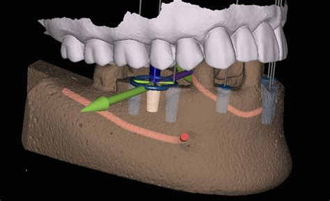gps implant implant navigation systems gps for dentists medicalexpo e magazine