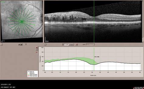 diode laser eye damage digital supplement tissue sparing micropulse diode laser photocoagulation in practice