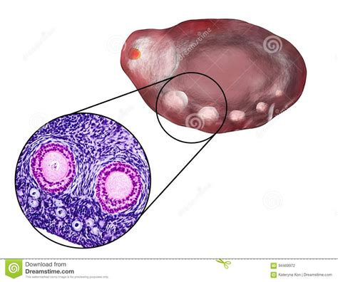 section of ovary ovary cartoons illustrations vector stock images 975
