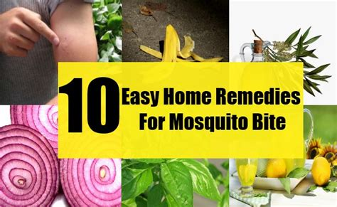 10 easy home remedies for mosquito bites