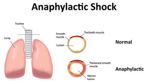 wann treten die ersten symptome einer schwangerschaft auf der anaphylaktische schock die schwerste form der
