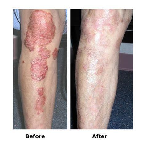 lichttherapie len vitiligo uv lichttherapieger 228 t uvb 311 nm le