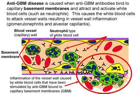 anti glomerular basement membrane causes symptoms - Anti Glomerular Basement Membrane Disease