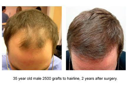 hair transplants 1000 graft coverage patient gallery dr robert jones