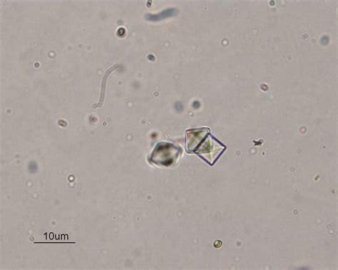 crystals in urine calcium oxalate crystals in urine sediment pictures to pin on thepinsta