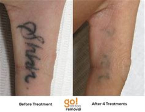 finger tattoo not healing 1000 images about tattoo removal in progress on pinterest
