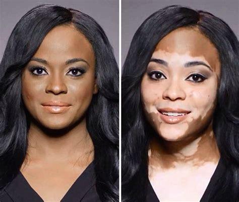 why is vitiligo so right now charlotte trendell