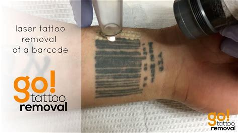 barcode tattoo youtube laser tattoo removal of a barcode tattoo youtube