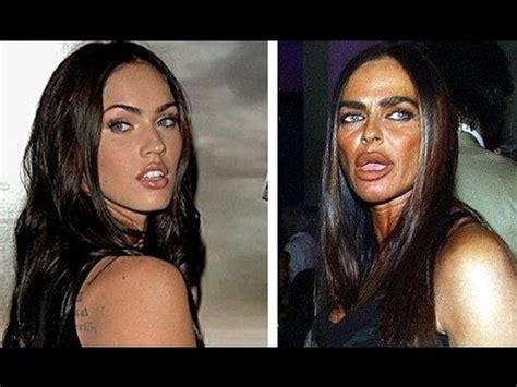 worst celeb plastic surgery 17 worst celebrity plastic surgeries youtube