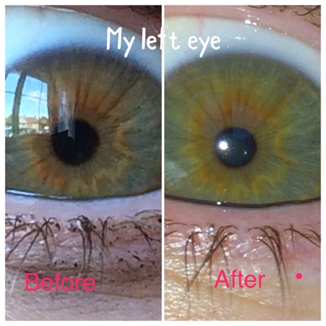 Iridology Detox by Before And After Pictures Of After Parasite Cleanse