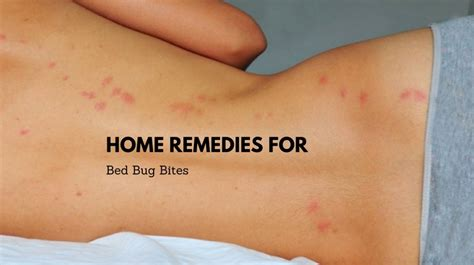 bed bug bites cure 9 effective remedies to get rid of bed bug bites