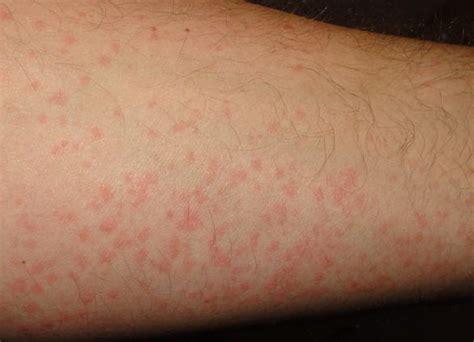 hives treatment chronic hives treatment hives