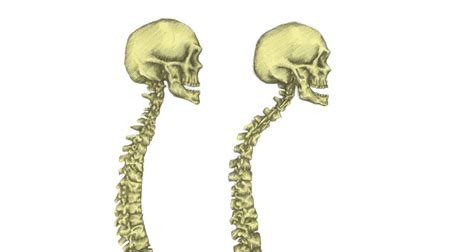 kyphosis caused  poor posture  treatment exercises