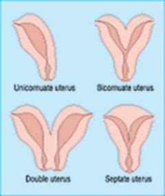 iud after c section bicornuate uterus sometimes referred to as a biquadrant