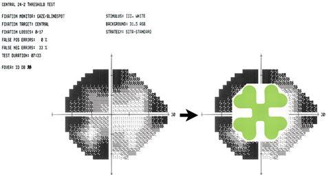 cloverleaf pattern visual field neuro ophthalmology hickman 11 3 191 practical