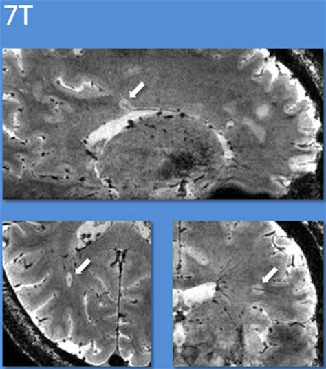 7t mri helps predict sclerosis in uncertain cases