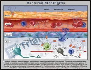 Bacterial meningitis brain trial graphic medical legal