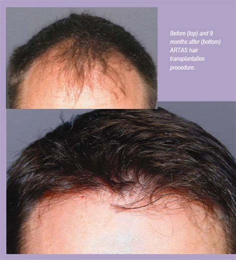 new technology for hair transplant latest technology in hair transplant