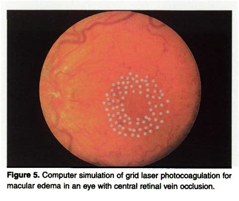 Grid Pattern Laser Photocoagulation | treatment of central retinal vein occlusion
