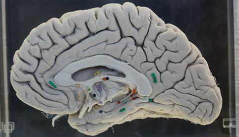 test alzheimer alzheimers disease blood test raises ethical issues aarp