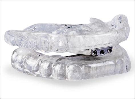 marion ia dentist cedar valley dentistry wilson dds marion general dentistry services cedar valley family