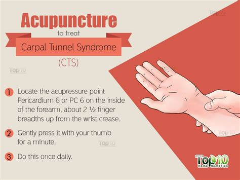 home remedies for carpal tunnel cts top 10