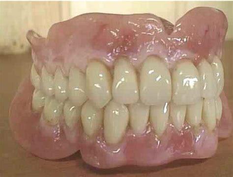 protesi dentarie mobili costi roma protesi mobili e fisse su impianti roma implantologia